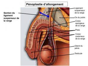 penoplastie allongement - chirurgie intime homme