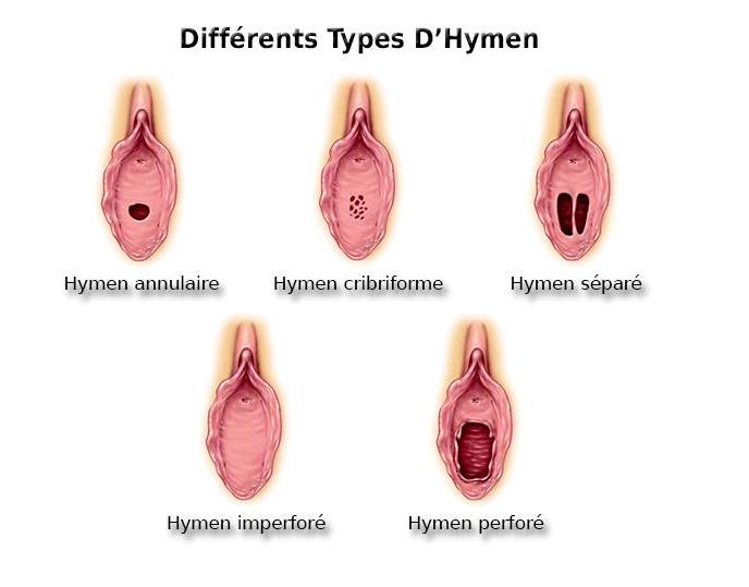 prix hymenoplastie Turquie